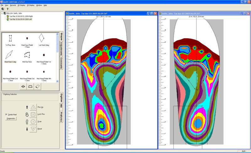 Amfit CAD-CAM program