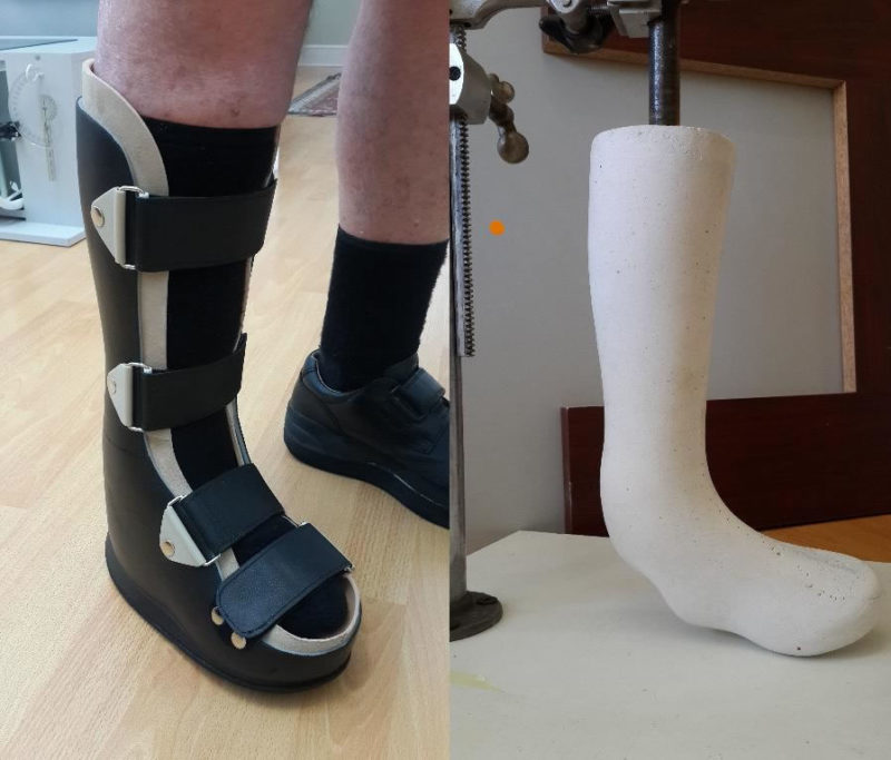 Boot for severe ankle-foot deformity